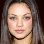 Mila Kunis Plastic Surgery Before and After