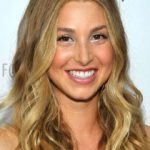 Whitney Port Plastic Surgery Before and After