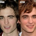 Robert Pattinson Plastic Surgery Before And After