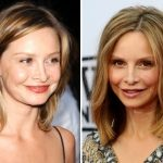 Calista Flockhart Plastic Surgery Before and After