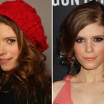 Kate Mara Plastic Surgery Before and After