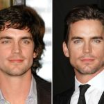 Matt Bomer Plastic Surgery Before and After