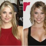 Ashley Benson Plastic Surgery Before and After