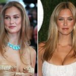 Bar Refaeli Plastic Surgery Before and After