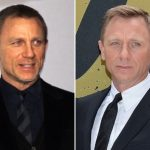 Daniel Craig Plastic Surgery Before and After