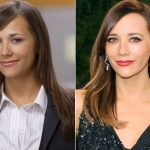 Rashida Jones Plastic Surgery Before and After