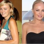Malin Akerman Plastic Surgery Before and After