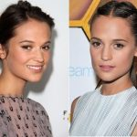 Alicia Vikander Plastic Surgery Before and After