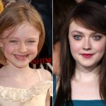 Dakota Fanning Plastic Surgery Before and After