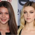 Nicola Peltz Plastic Surgery Before and After