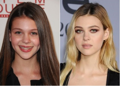 Nicola Peltz Plastic Surgery Before And After Celebrity Surgeries