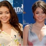 Sarah Hyland Plastic Surgery Before and After