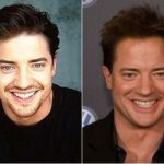 Brendan Fraser Plastic Surgery Before and After
