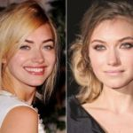 Imogen Poots Plastic Surgery Before and After