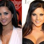 Sunny Leone Plastic Surgery Before and After