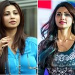 Daisy Shah Plastic Surgery Before and After
