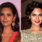 Esha Gupta Plastic Surgery Before And After