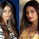 Athiya Shetty Plastic Surgery Before and After