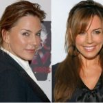 Krista Allen Plastic Surgery Before and After
