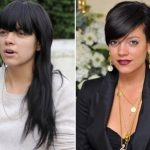 Lily Allen Plastic Surgery Before and After