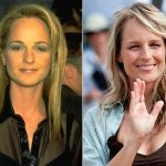 Helen Hunt Plastic Surgery Before and After