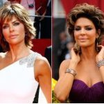 Lisa Rinna Plastic Surgery Before and After