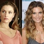 Mädchen Amick Plastic Surgery Before and After