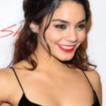 Vanessa Hudgens Plastic Surgery Before and After