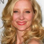 Anne Heche Plastic Surgery Before and After