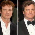 Colin Firth Plastic Surgery Before and After