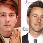 Edward Norton Plastic Surgery Before and After