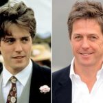 Hugh Grant Plastic Surgery Before and After