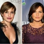 Mariska Hargitay Plastic Surgery Before and After