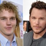 Chris Pratt Plastic Surgery Before and After