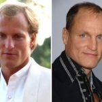 Woody Harrelson Plastic Surgery Before and After
