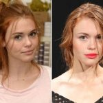 Holland Roden Plastic Surgery Before and After