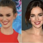 Elizabeth Henstridge Plastic Surgery Before and After