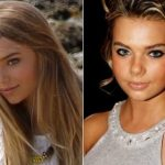 Indiana Evans Plastic Surgery Before and After