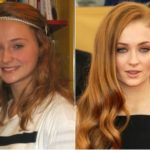 Sophie Turner Plastic Surgery Before and After