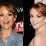 Jayma Mays Plastic Surgery Before and After
