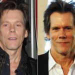 Kevin Bacon Plastic Surgery Before and After