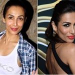 Malaika Arora Khan Plastic Surgery Before and After