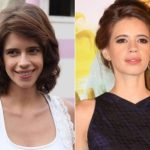 Kalki Koechlin Plastic Surgery Before and After