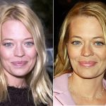 Jeri Ryan Plastic Surgery Before and After