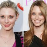 April Bowlby Plastic Surgery Before and After