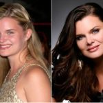 Heather Tom Plastic Surgery Before and After