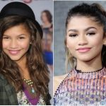 Zendaya Plastic Surgery Before and After
