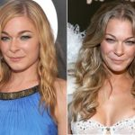 LeAnn Rimes Plastic Surgery Before and After