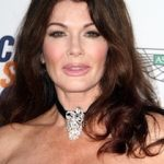 Lisa Vanderpump Plastic Surgery Before and After